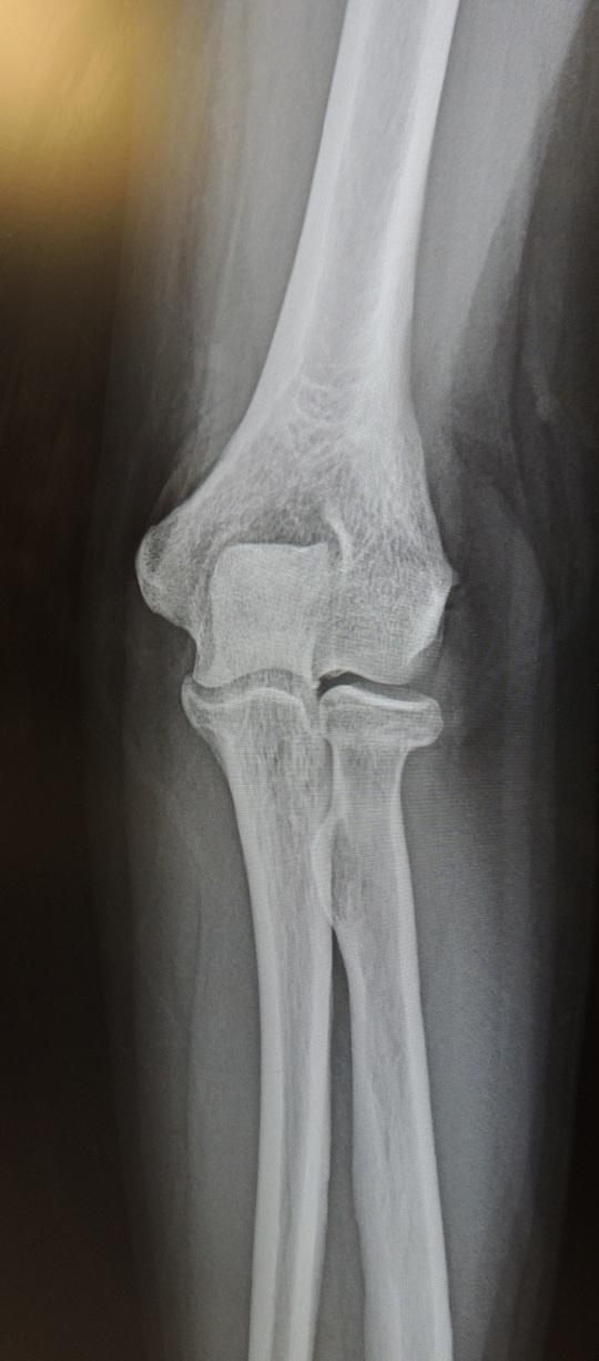 bone pic 2